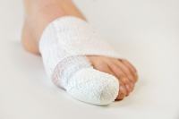 Symptoms of a Broken Toe